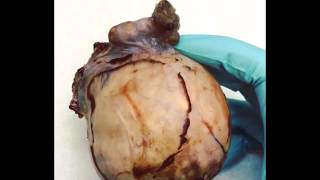Massive Dermoid Cyst   Inner Contents Revealed For Medical Discussion