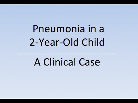 case study pneumonia pediatric Study flashcards on 1 case study 2 streptococcus pneumoniae at cramcom quickly memorize the terms, phrases and much more cramcom makes it easy to get the grade you want.