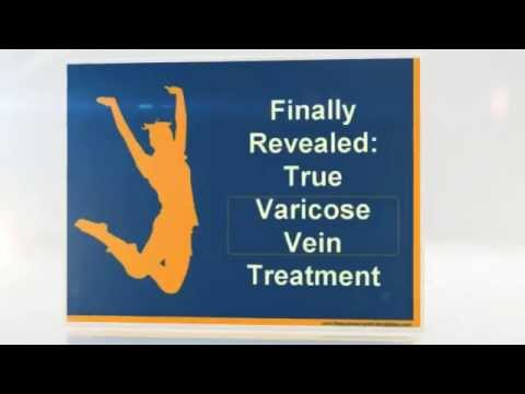 Finally Revealed True Varicose Vein Treatment