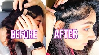 How I Grew Back My Bald Spots In 4 MONTHS! ALOPECIA AREATA