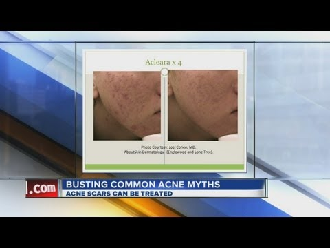 Clearing up common acne myths
