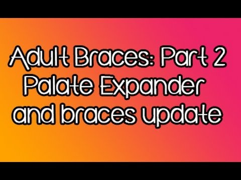 Adult Orthodontics 2: Palate Expander and Braces Update