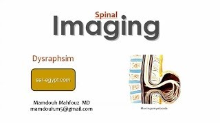 Imaging of Spinal Dysraphyism - Prof. Dr. Mamdouh Mahfouz (In Arabic)