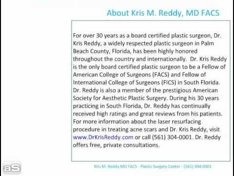 dr. kris reddy reviews laser resurfacing for acne scars