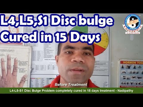 L4-L5-S1 Disc Bulge Problem completely cured in 15 days treatment - Nadipathy