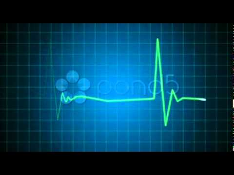 Stock Video Footage  EKG heart monitor goes flatline HD PAL   18 01 2011, 19 54