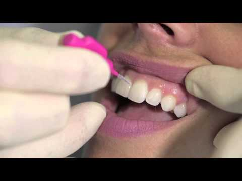 How to get rid of gingivitis with braces