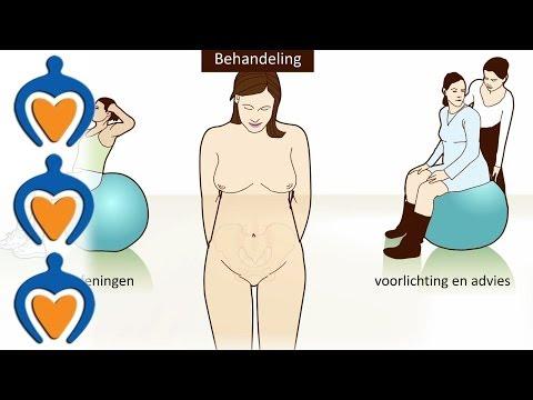 bandenpijn na zwangerschap