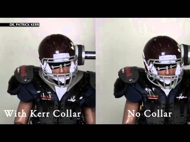 Can collar help prevent football injuries?