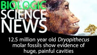 Science News - 12.5 million year old Dryopithecus molar fossils show evidence of painful cavities