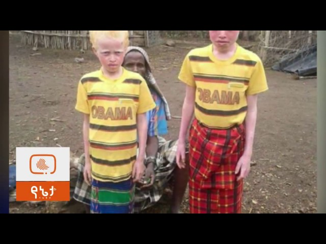 Ethiopian kids with Albinism