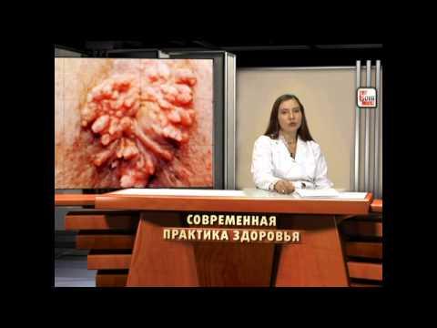ПАПИЛЛОМА - симптомы, лечение, профилактика. Энциклопедия болезней, передающихся половым путем.