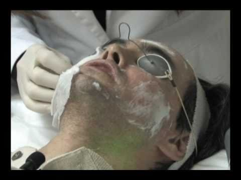 Laser skin resurfacing for Acne scars part 2