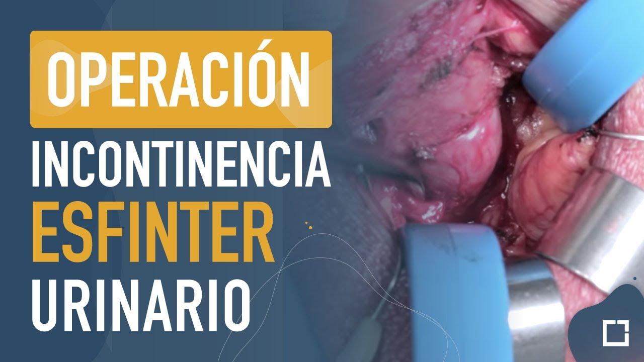 Operaci n de esfinter urinario para la incontinencia for Agujeros femeninos