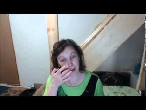 0 - Зірочка при гаймориті можна мазати ніс бальзамом
