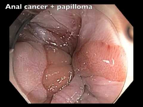 Colonoscopy Channel-anal Papilloma And Cancer video