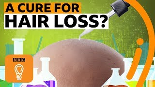 Why is there no cure for hair loss? | BBC Ideas