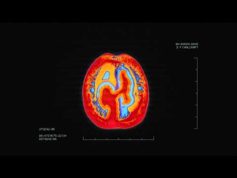 Brain Scan PSA (Alzheimer Society)
