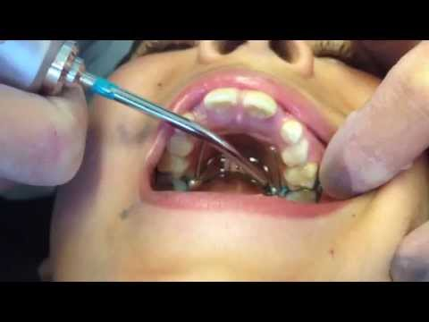 Fitting the Rapid Palatal Expander