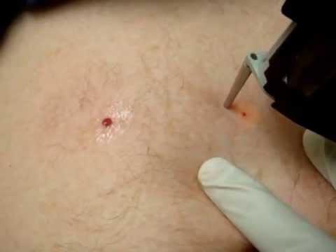 Cherry Angiomas Red Moles Treatment Youtube