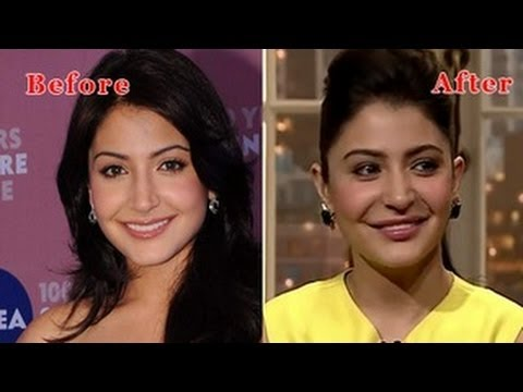 Anushka Sharma Reacts To Her Lip Job Surgery video
