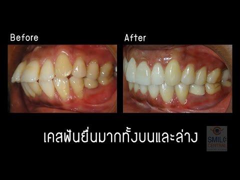 จัดฟัน invisalign เคสฟันยื่นมาก เด็นทัลดีไซน์เซ็นเตอร์ พัทยา / สไมล์ เซ็นทรัลเวสเกต บางใหญ่