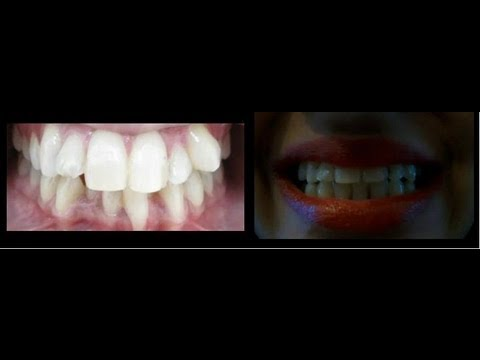 Teeth Slideshow: Before, During and After with Braces.