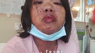 Save Maria From Steven Johnson Syndrome