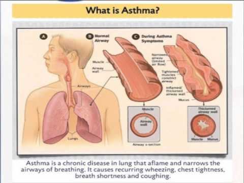 Allergy and Asthma Prevention and Treatment