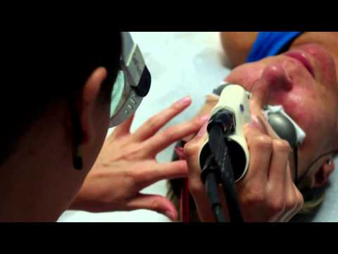 SynerChi Day Spa - CoolTouch Laser Treatments - San Diego Beauty and Cosmetic Dermatology Services