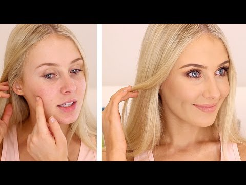 HOW TO COVER ACNE/BLEMISHES!