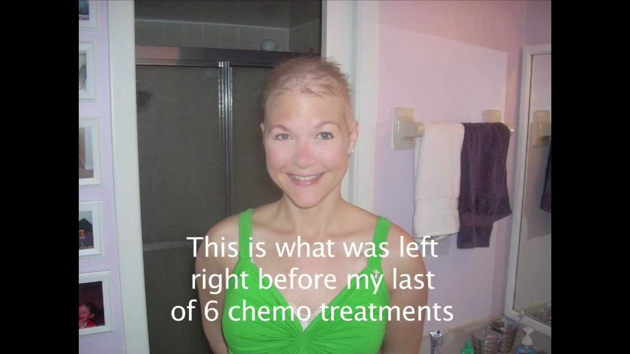 Hair Regrowth After Chemo - YouTube