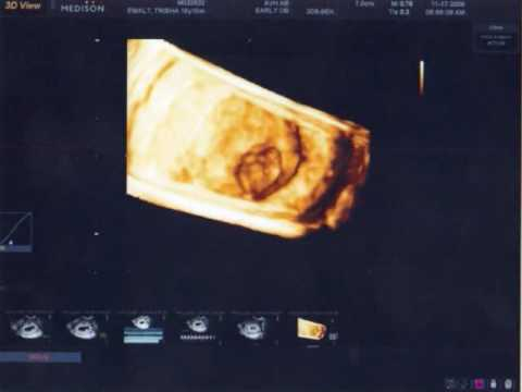 ultrasound for dating