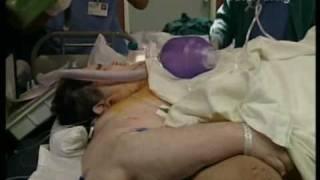 хирургия лишнего веса 9
