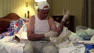 Leech Therapy for forearm hematoma-part 1 of 2