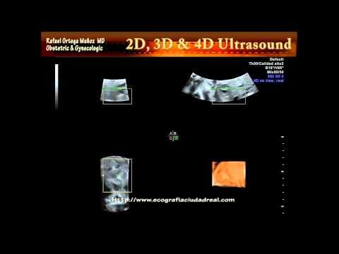 Morfologica 22 semanas valvulas cardiacas Clinica Ginecologica Dr. Rafael Ortega Muñoz Ciudad Real