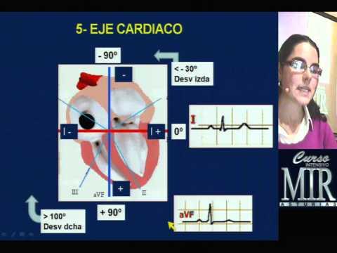 Cómo interpretar un ECG (repaso)