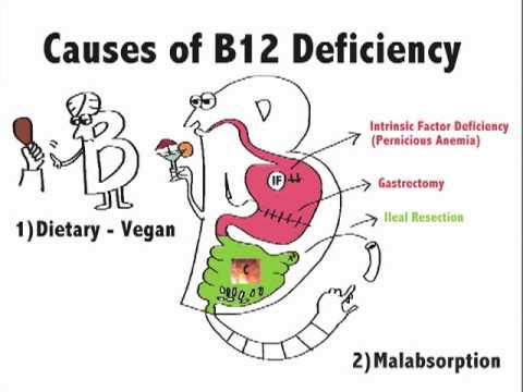 Causes of B12 Deficiency - YouTube B12 Deficiency