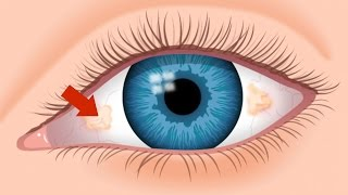 Ugly Yellow Spots - Tampa FL Eye Doctor 813-632-2020