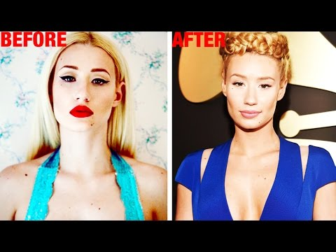 "Iggy Azalea ""Improves"" Her Body??"