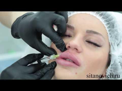 Увеличение губ/ эффект Джоли