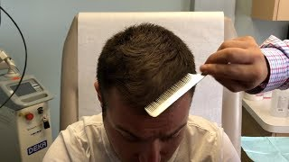 TOPICAL FINASTERIDE FOR MALE PATTERN HAIRLOSS -- REAL PATIENT TESTIMONIAL
