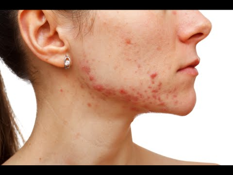 How to Manage Acne for Life