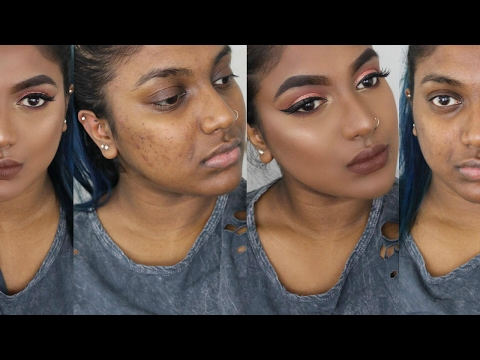 FLAWLESS FOUNDATION ROUTINE FOR OILY ACNEIC SKIN   COVER ACNE SCARS & KEEP FACE MATTE ALL DAY