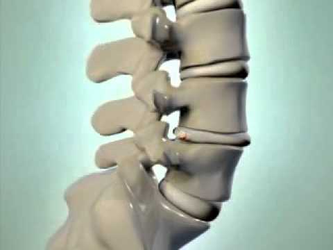 0 Herniated Disc   DePuy Videos