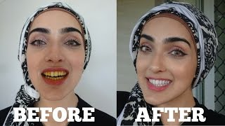 How To WHITEN Yellow Teeth NATURALLY & INSTANTLY AT HOME in 2 MINS | 100% Effective | OIL PULLING