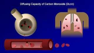 Pulmonary Function Tests (PFT): Lesson 4 - DLCO