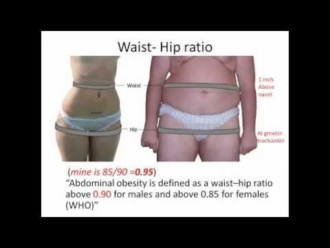 Metabolic Syndrome (Malayalam) Dr Viswanathan C