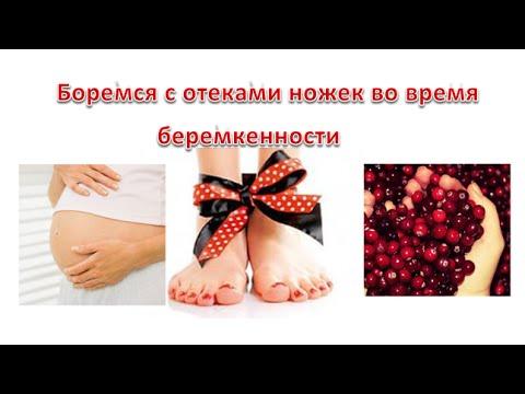 Отеки на последней недели беременности опасно