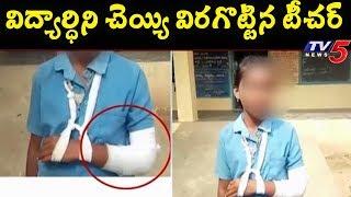 మాట వినడం లేదని విద్యార్థిని చెయ్యి విరగొట్టిన టీచర్ | Chittoor District | TV5News